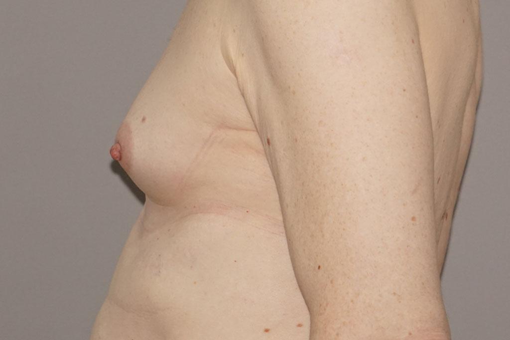 Aumento de pecho en una paciente transgénero de 26 años 03