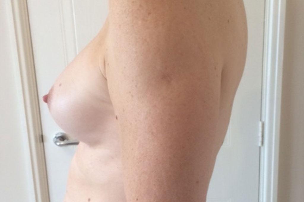 Aumento de pecho en una paciente transgénero de 26 años 04