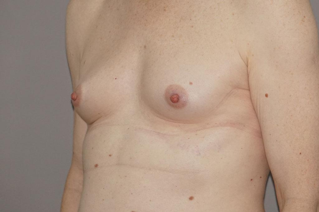 Aumento de pecho en una paciente transgénero de 26 años 05