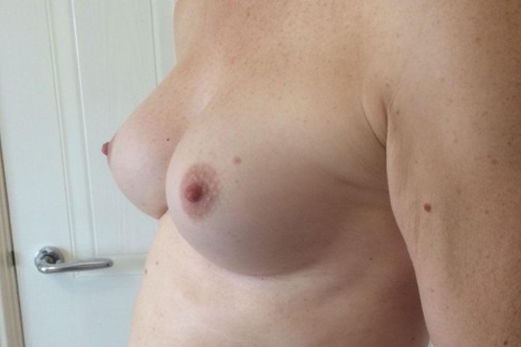 Aumento de pecho en una paciente transgénero de 26 años 06