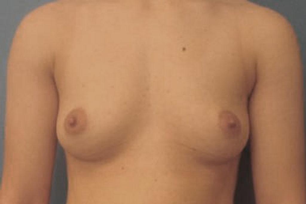 Cambio de sexo Antes y el después Mastectomía 2 semanas postoperatorio 01