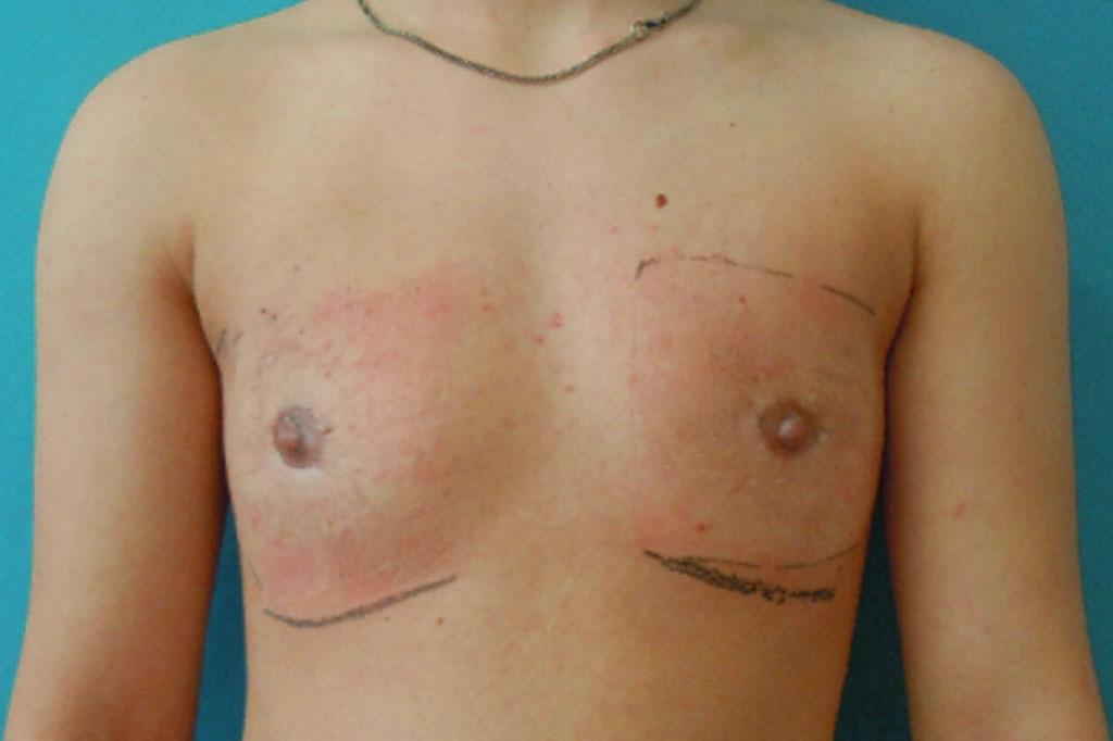 Cambio de sexo Antes y el después Mastectomía 2 semanas postoperatorio forntal