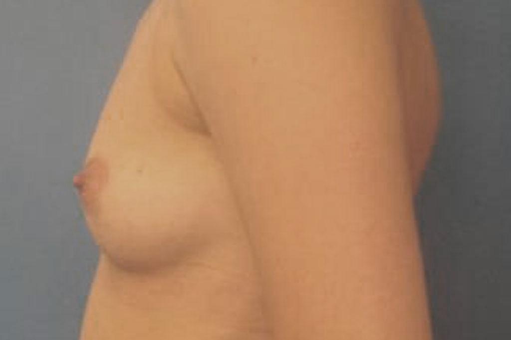 Cambio de sexo Antes y el después Mastectomía 2 semanas postoperatorio 03