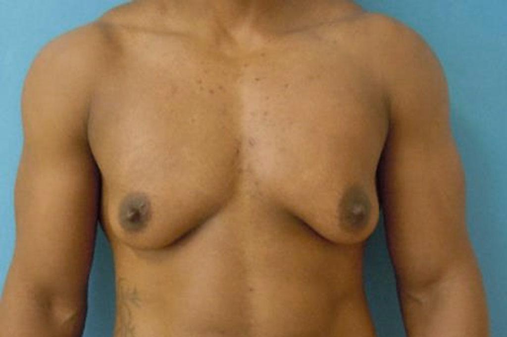 Cambio de sexo Antes y el después Mastectomía postoperatorio hombre trans forntal
