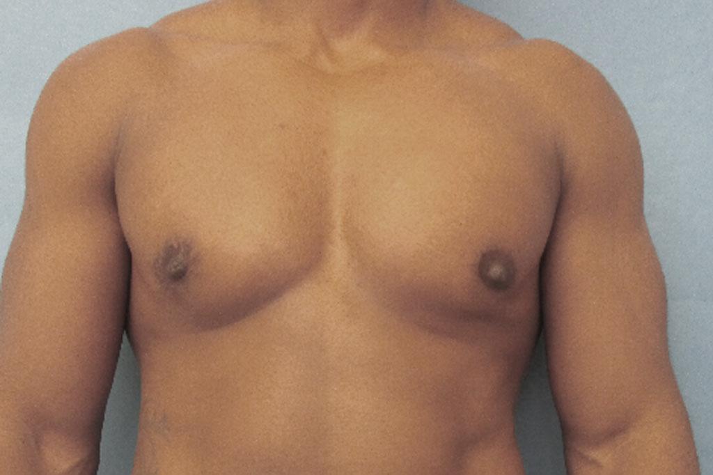 Cambio de sexo Antes y el después Mastectomía postoperatorio hombre trans 02