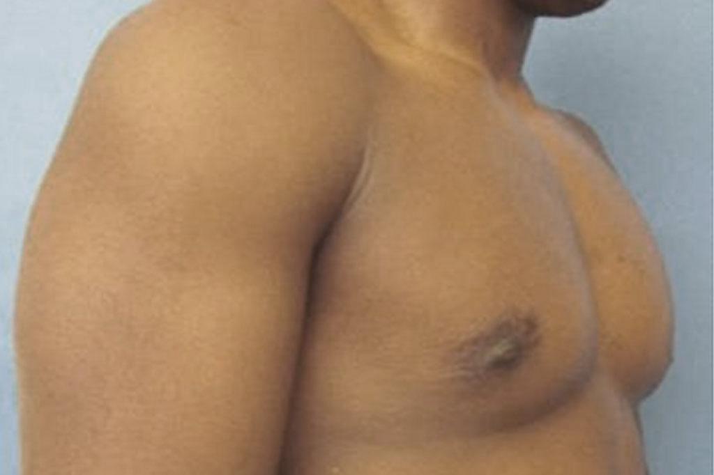 Cambio de sexo Antes y el después Mastectomía postoperatorio hombre trans 04
