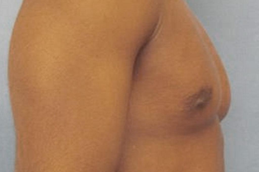 Cambio de sexo Antes y el después Mastectomía postoperatorio hombre trans 06