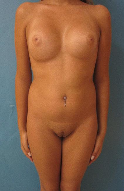 Cambio de sexo Antes y el después Vaginoplastia forntal
