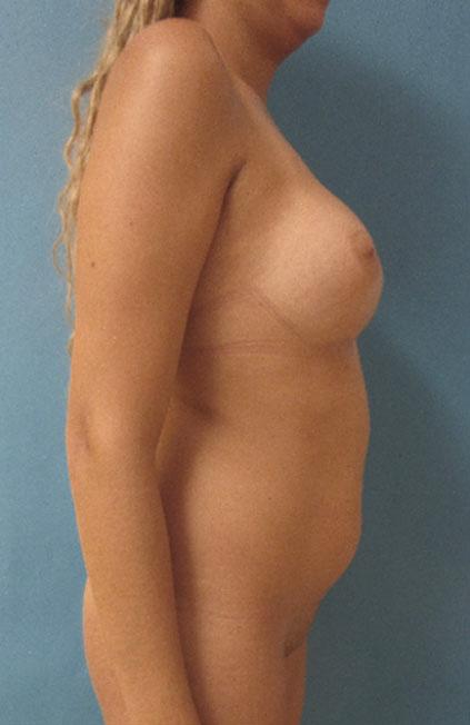 Cambio de sexo Antes y el después Vaginoplastia 05