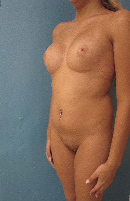 Cambio de sexo Antes y el después Vaginoplastia 06