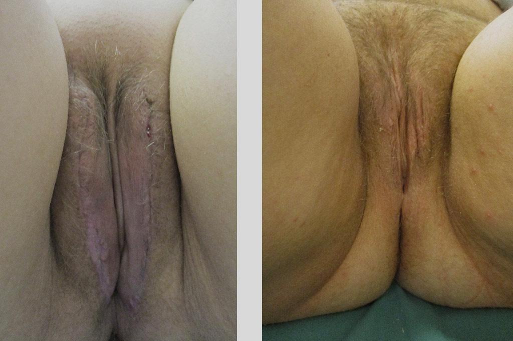 Cambio de sexo Vaginoplastia 1 a 12 meses postoperatorio 01