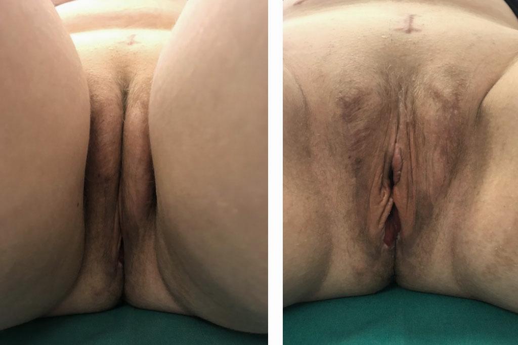 Cambio de sexo Vaginoplastia 1 a 12 meses postoperatorio 02