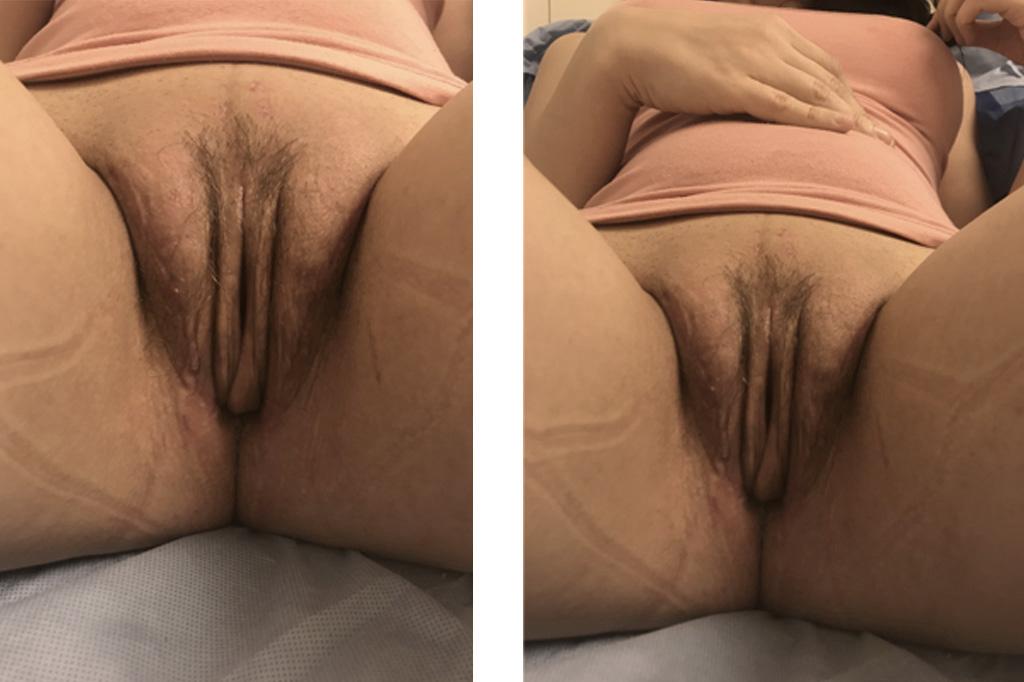 Cambio de sexo Vaginoplastia 6 semanas postoperatorio 01