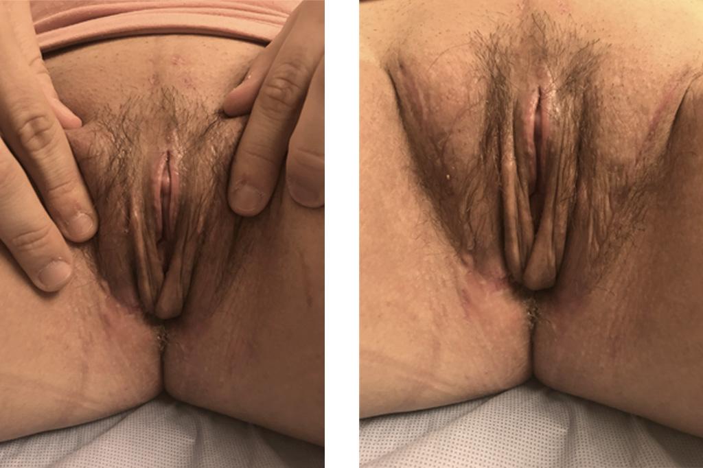 Cambio de sexo Vaginoplastia 6 semanas postoperatorio 02