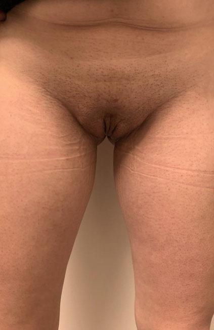 Vaginoplastia antes y después. Cirugía de reasignación de sexo forntal