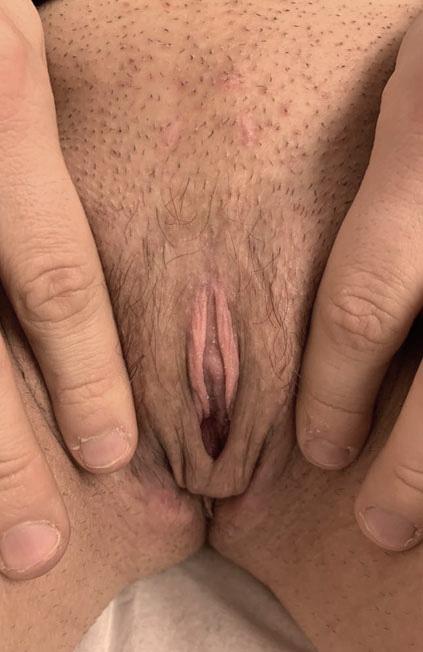 Vaginoplastia antes y después. Cirugía de reasignación de sexo 03